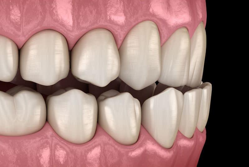 dental occlusal