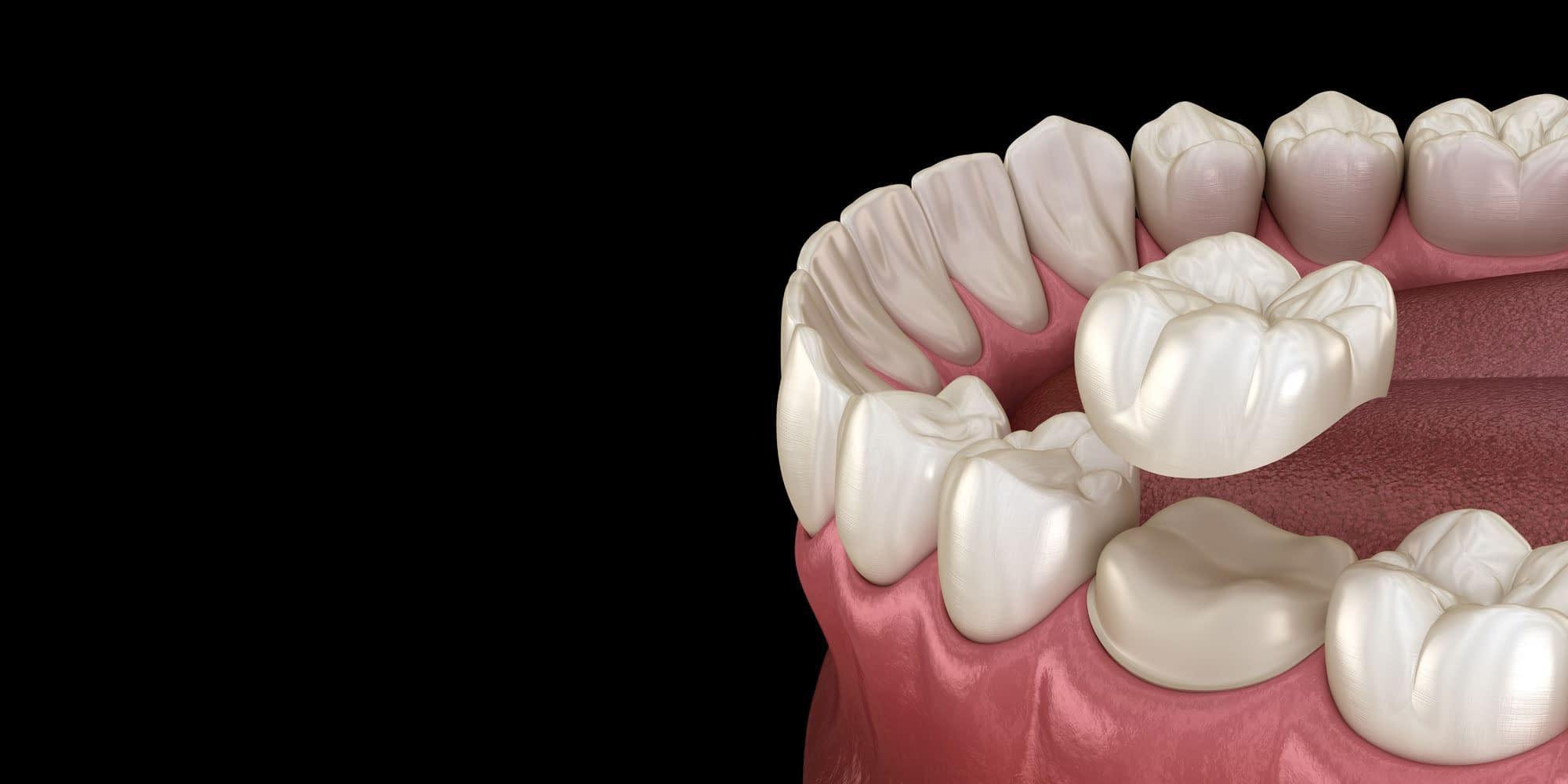 dental crowns model