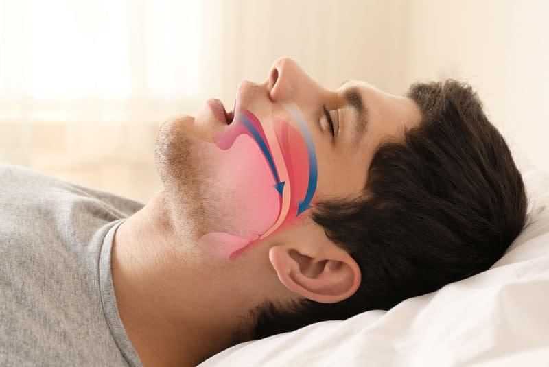 sleep apnea graphic